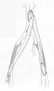 Aobifemoral_bypass